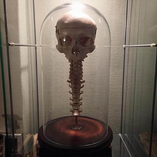 skull and half spine